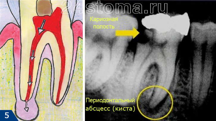 Эффективность и результат лечения напрямую зависит от того, насколько качественно стоматолог почистит и запломбирует каналы.